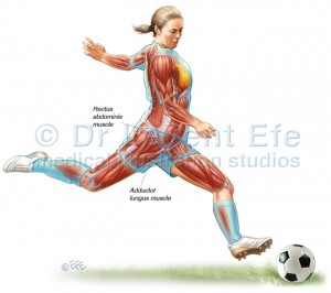 Athletic Pubalgia and Groin Injuries