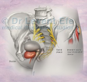 Read more about the article InterStim Sacral Neuromodulation Therapy
