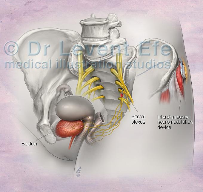 InterStim Sacral Neuromodulation Therapy