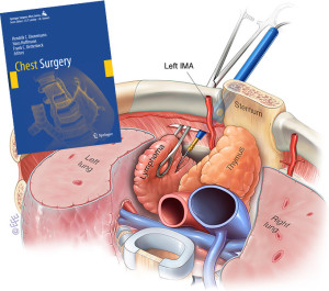 Chest Surgery Atlas out