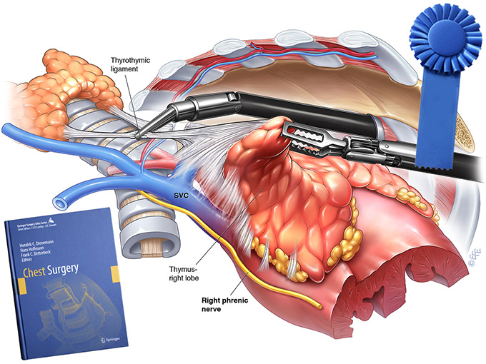 """Chest Surgery Atlas receives """"Award of Excellence"""""""