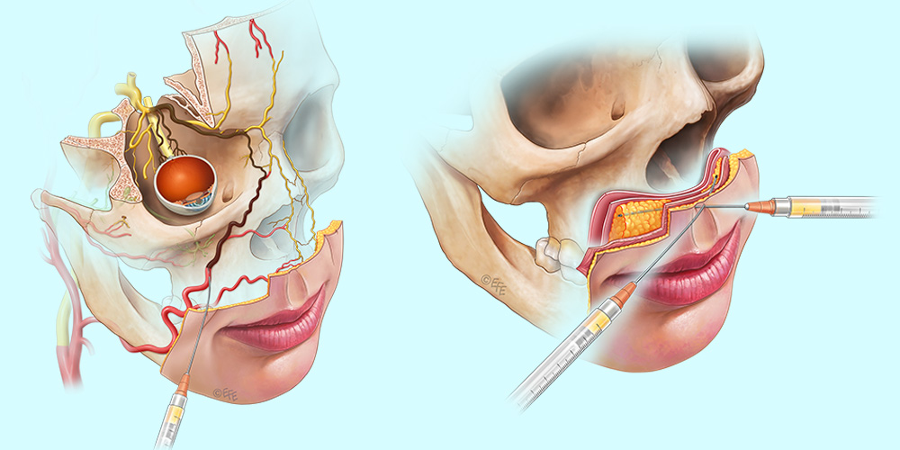 Perioral injections
