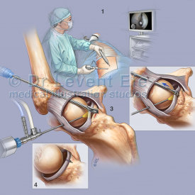 Acetabular rim osteoplasty with labral take down