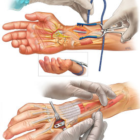 Distal radius management