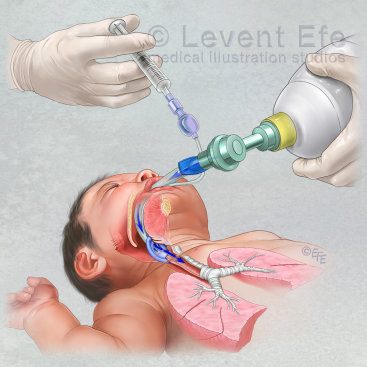 Laryngeal Mask Airway insertion in the newborn
